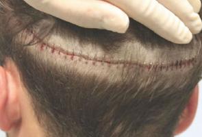 Τεχνική Μεταμόσχευσης Μαλλιών Follicular Unit Transplant (FUT- Strip)