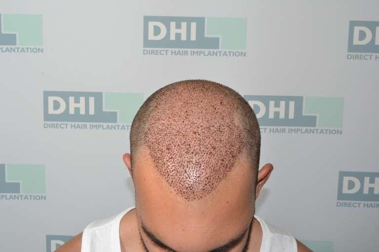 Τέσσερις μέρες μέτα τη μεταμόσχευση μαλλιών στην DHI! (PHOTOS)