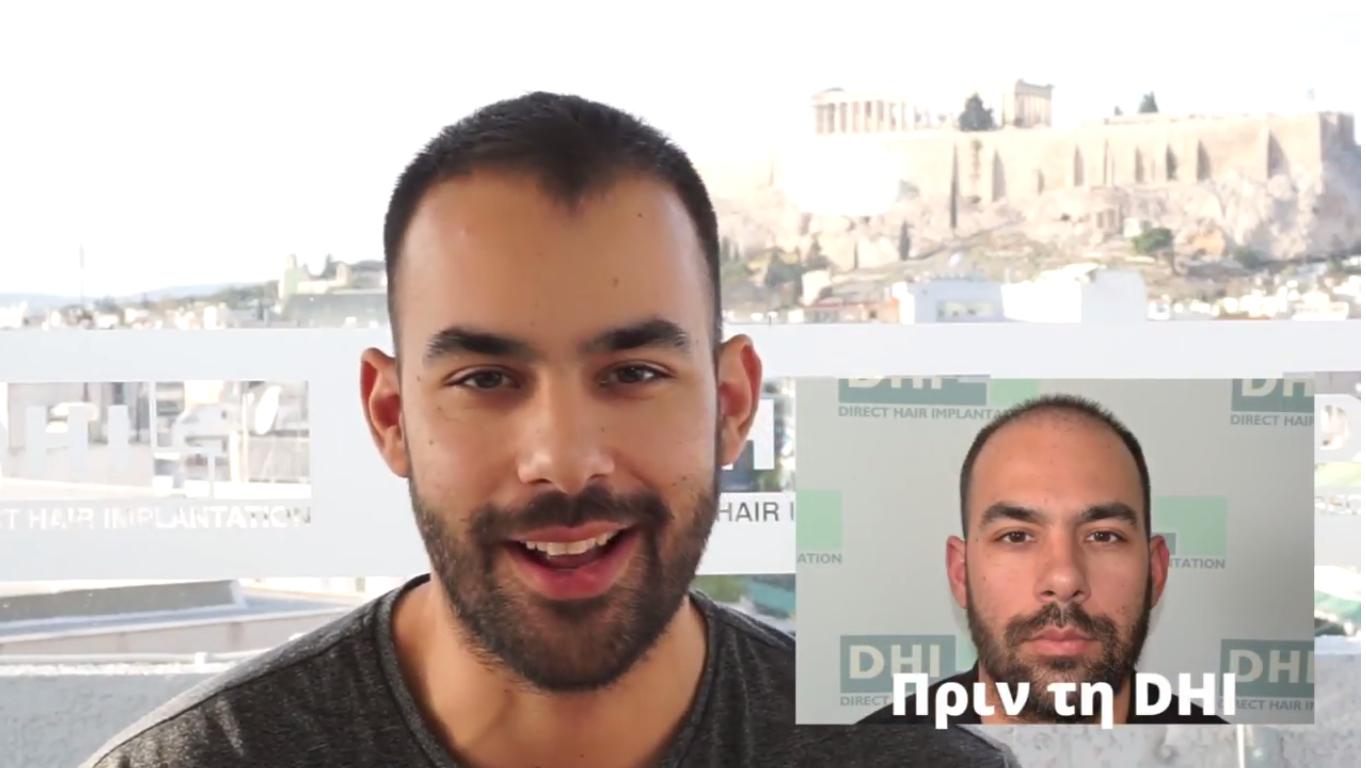 Πέντε μήνες μετά τη Μεταμόσχευση Μαλλιών στην DHI
