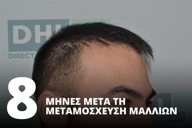 8 Μήνες μετά την Μεταμόσχευση Μαλλιών