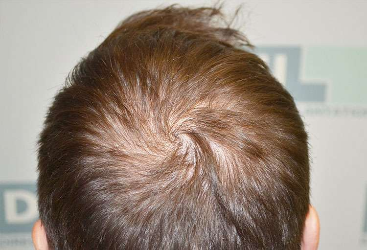 Scalp-Micropigmentation-Before