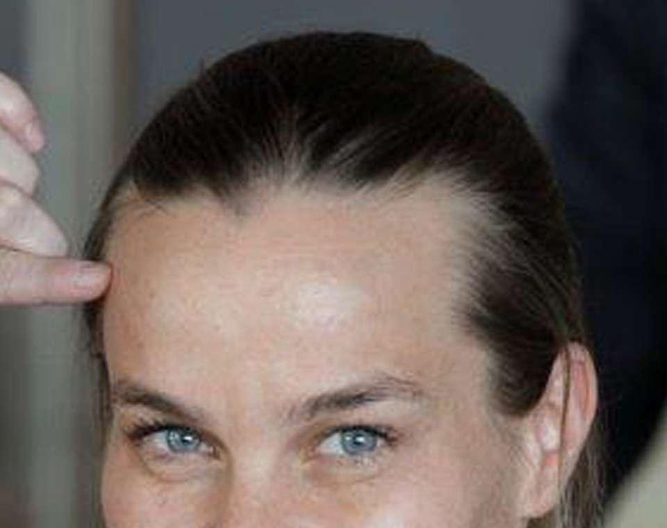 Μεταμόσχευση Μαλλιών σε γυναίκα